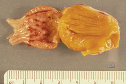 Avian Influenza: Chicken, proventriculus. There are multiple hemorrhages on the mucosal surface of the proventriculus.