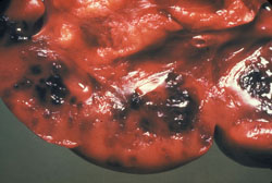 Anthrax: Bovine, lymph node. The node is hyperemic and contains multiple dark foci of hemorrhage.