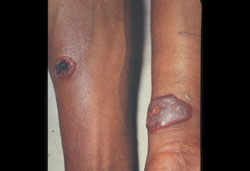 Anthrax: Human, skin. Lesions are raised and have necrotic centers.