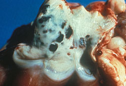 Bluetongue: Sheep, pulmonary artery. There are multiple ecchymoses on the intimal surface.