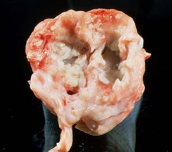 Caprine Arthritis and Encephalitis: Goat, carpal joint. Marked proliferative synovitis and cartilage erosion.
