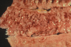 Campylobacteriosis: Primate, colon.  Mucosal edema, muco-hemorrhagic exudate, and thickened folds of the colon.