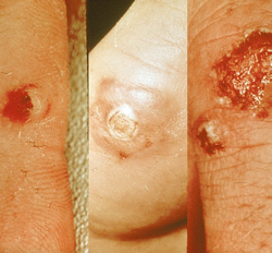 Contagious Ecthyma: Human, skin. Papules exhibit central necrosis and/or hemorrhage.