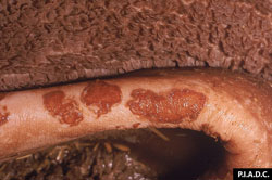 Foot and Mouth Disease: Rumen mucosa, higher magnification. There are