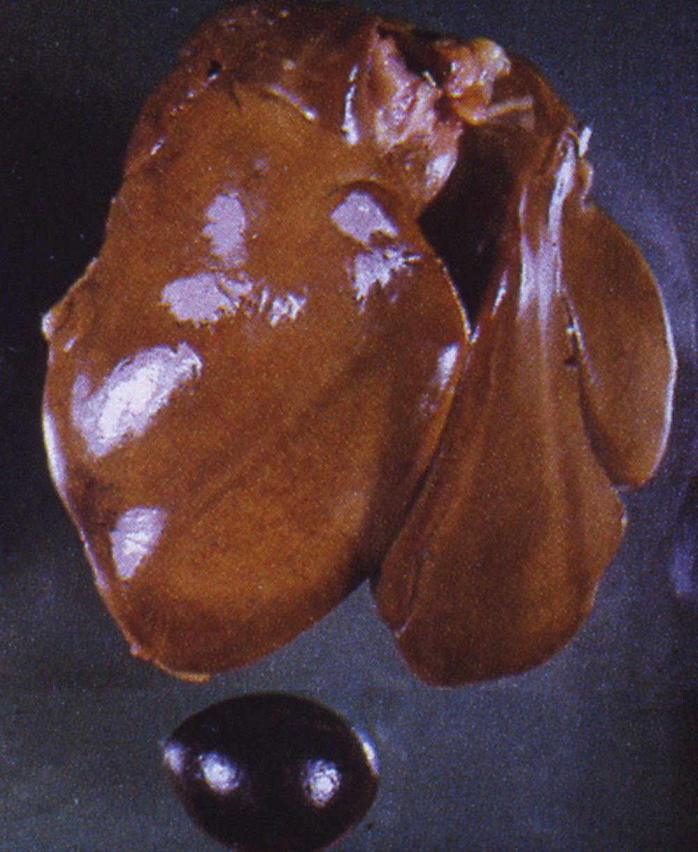 fowl-typhoid: Avian liver, spleen. Liver is pale with diffuse yellow-brown (bronze) discoloration; splenic congestion and enlargement.