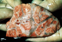 Lumpy Skin Disease: Bovine, lung. There is marked generalized interlobular edema, and there is a small cluster of red nodules on the left side of the specimen.