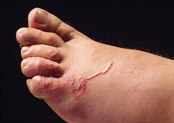 Larva Migrans: Human, foot. The foot is markedly edematous, and contains a raised, thin, red, serpiginous tract.