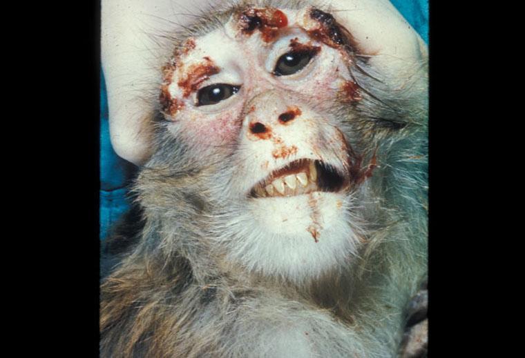 monkeypox - photo #31
