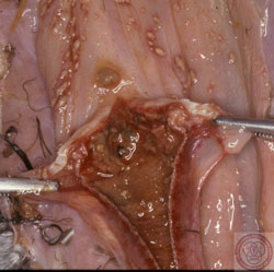 Newcastle Disease: Avian, diphtheritic laryngo-tracheitis