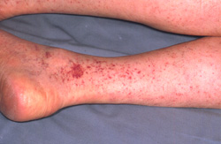 Rocky Mountain Spotted Fever: Human, legs. Disseminated cutaneous petechiae coalesce in two foci to form ecchymoses.