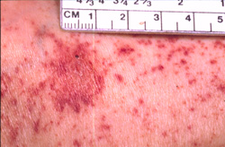 Rocky Mountain Spotted Fever: Human, skin. There are numerous, often coalescing petechiae. A single ecchymosis exhibits desquamation and contains a dark red focus (necrosis).