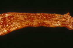 <i>Salmonella</i> (Nontyphoidal): Pig, intestine. The intestinal lumen has reddened erosions and a fibrinonecrotic exudate.