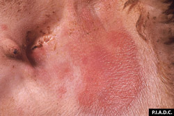 Sheep and Goat Pox: Sheep, inguinal skin. There are several coalescing macules.
