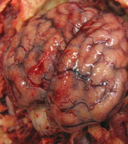 Streptococcosis: Pig, brain. Leptomeninges over the cerebral hemispheres are severely congested and contain foci of hemorrhage; the underlying gyri are flattened, and some sulci are cloudy due to the presence of purulent exudate (meningitis caused by Strep suis).