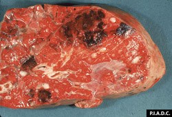 Theileriosis: Bovine, lung. Lung tissue is noncollapsed, contains multiple foci of hemorrhage, and there is fluid/foam within interlobular septa and bronchi.