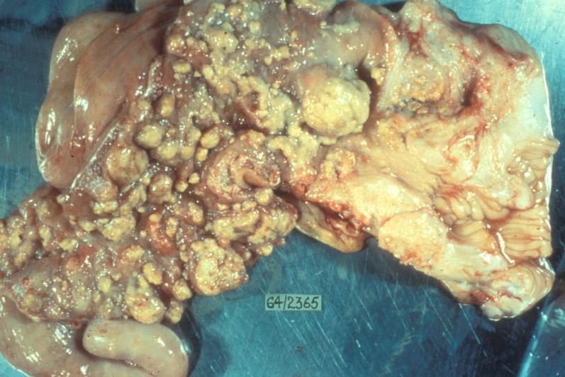 appendix pain x biogenesis