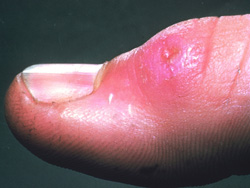 Tularemia: Human, skin. There is an ulcerated papule over the interphalangeal joint.