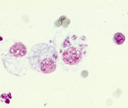 Toxoplasmosis: Cat, transtracheal aspirate. This transtracheal aspirate fluid contains macrophages with intracytoplasmic Toxoplasma gondii.